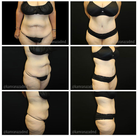 6 MONTHS POST TUMMY TUCK SURGERY