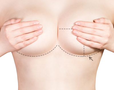 5 Hot Trends in Plastic Surgery