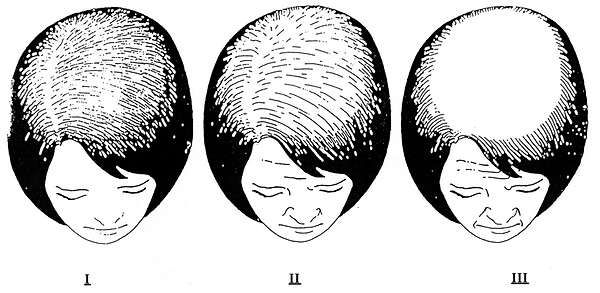 Mabroor Bhatty - Female Hair Transplant Diagram
