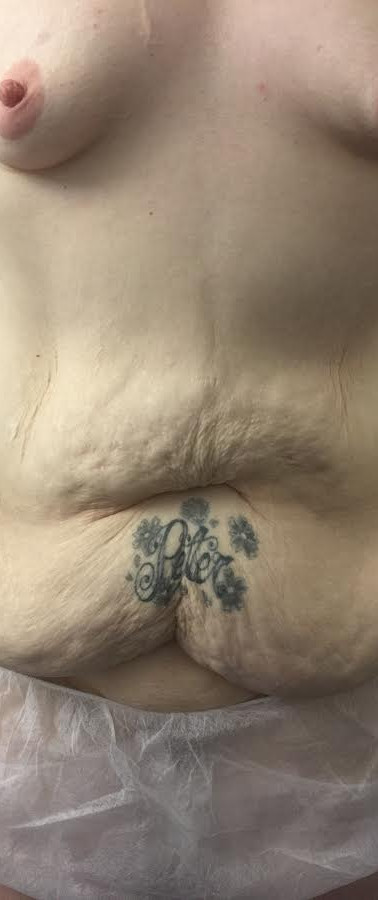 Pre Op - Vertical Scar Abdominoplasty and Lipo