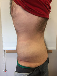 Mabroor Bhatty - Liposuction result