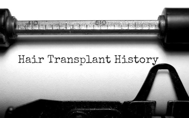 The History Of Hair Transplant Surgery