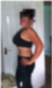Tummy Tuck Results - Mabroor Bhatty