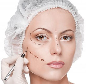 Mabroor Bhatty - MArking face for Dermal Fillers