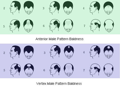 Mabroor Bhatty - Male Hair Transplant diagram