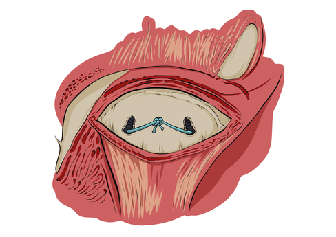 Procedimento médico na mandibula