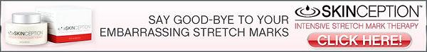 skinception-stretchmark_728x90.jpg