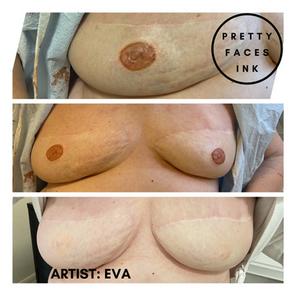 Areola and Nipple Paramedical Tattoo