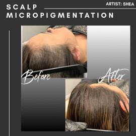 Scalp Micropigmentation Thinning Hair