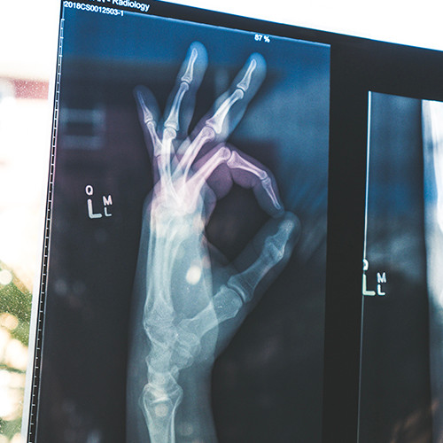 Photo of an X ray of a hand making an ok symoble