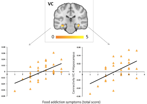 Food for Thought: Neural Connectivity Changes and Food Addiction