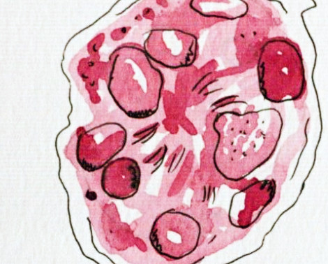 Don't Eat The Pink Snow: Watermelon Snow Microbiomes in the Arctic and Glacial Melt