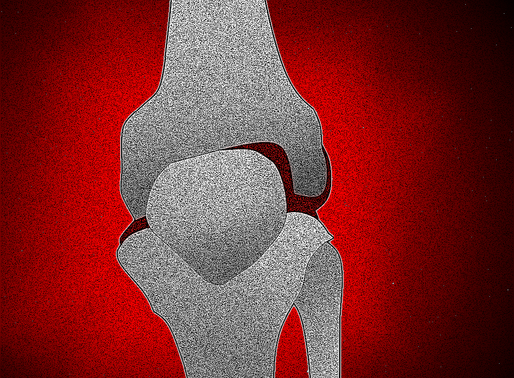 Engineering Cartilage for Treatment of Osteoarthritis