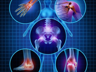 Arthritis - Are you ignoring the pain?