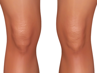 The rise of knee pain