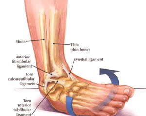 Ankle Injuries - How common are they?
