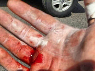 A Bloody Mess: Tips on Hand Rip Prevention