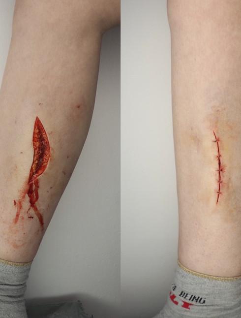 Fresh wound and stitches