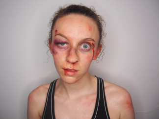 Out of kit boxing injuries
