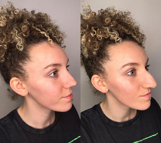 Gelatine Nose before and after