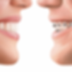 orthodontie-invisible-min-750x750.png