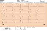 Rytme EKG, lang utskrift-1.png
