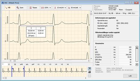 Skjermbilde fra Rytme EKG.png