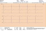 Hvile EKG, lang utskrift.png