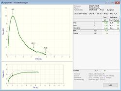 Skjermbilde spirometri FVC.png