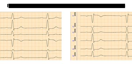 Slik får du gode EKG-signaler