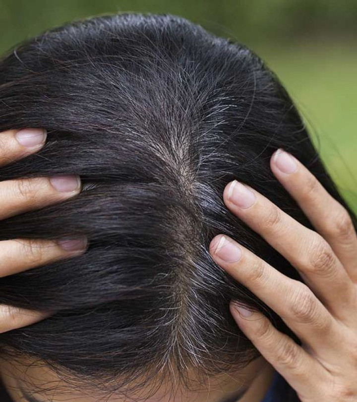 colonized hair
