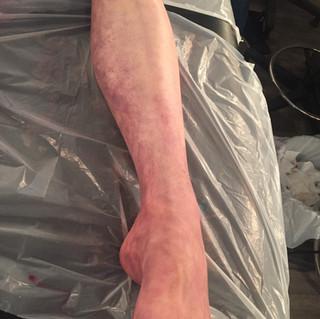 Corpse leg