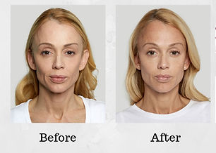 sculptra-aesthetic-before-and-after-photo1.jpg