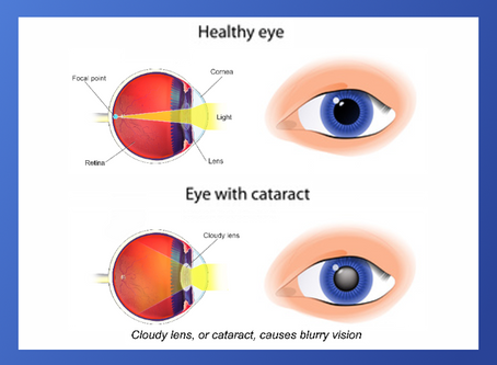 JUNE is Cataract Awareness month.