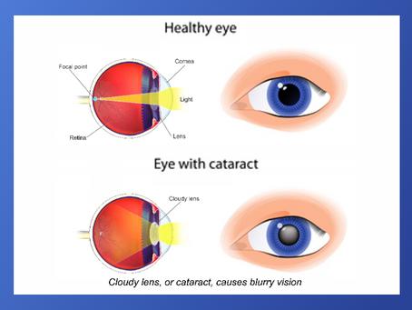 JUNE is Cataract Awareness month.