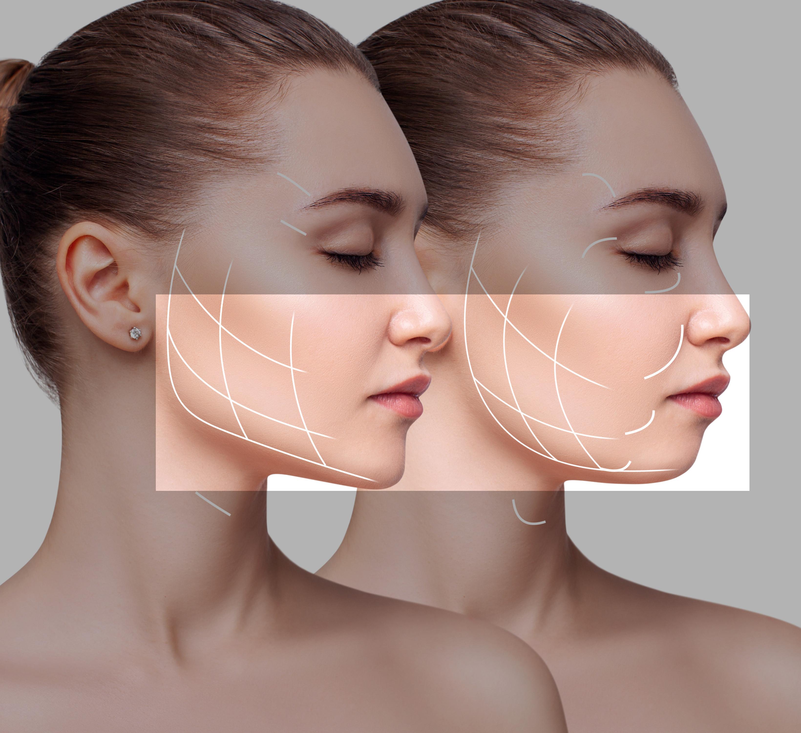 hifu linea mandibular