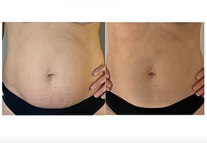 HIFU antes y despues abdomen BARCELONA.p
