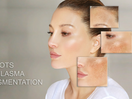 Hyperpigmentation and Melasma..What to do? Obagi-Nuderm to the rescue!