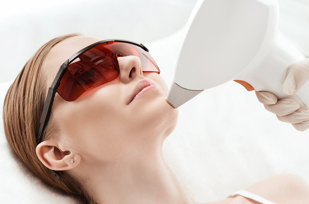 Laser Hair Removal west Palm Beach by V Boutique Aestheics