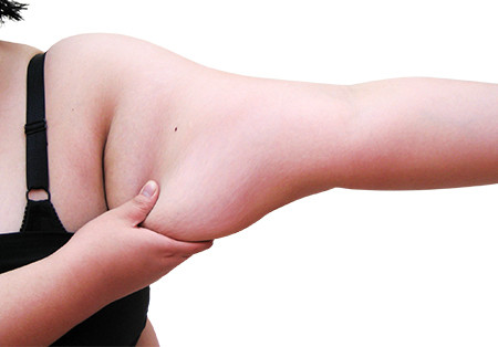 Dr. V: How to get rid of flabby arms this Summer