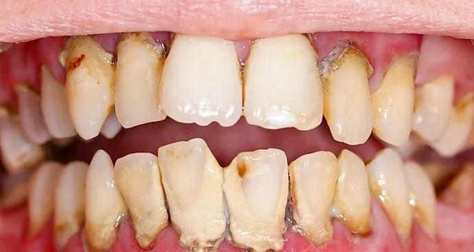 Gum-disease-compressor.jpg