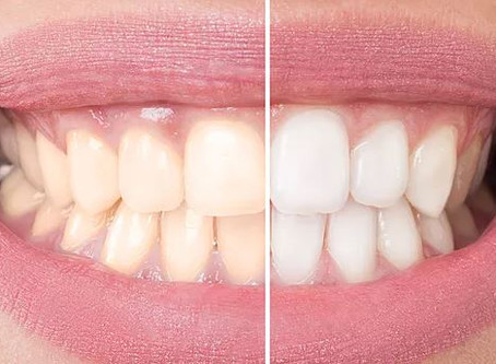 What to expect from professional teeth whitening