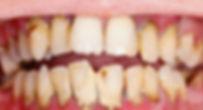 Gum disease | Greenland Dental
