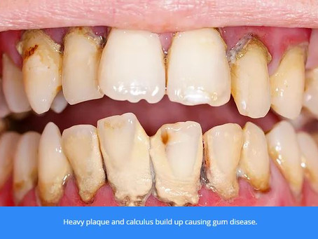Preventing gum problems that lead to tooth loss