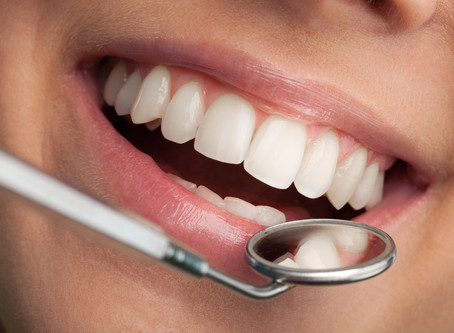 Benefits of professional teeth whitening vs over the counter                   treatments