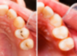Before and after tooth coloured fillings | Greenland Dental