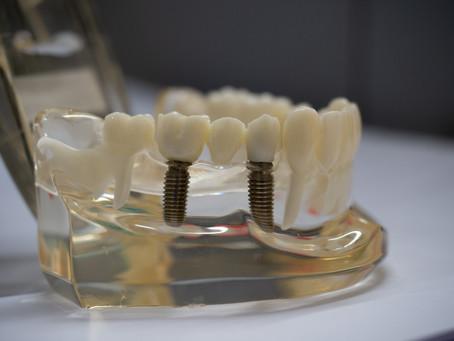 Implant supported bridges