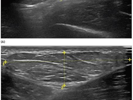 Aprendendo sobre ultrassonografia no sistema locomotor - imagens de tumores
