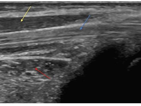 Aprendendo sobre ultrassonografia no sistema locomotor - imagens dos músculos