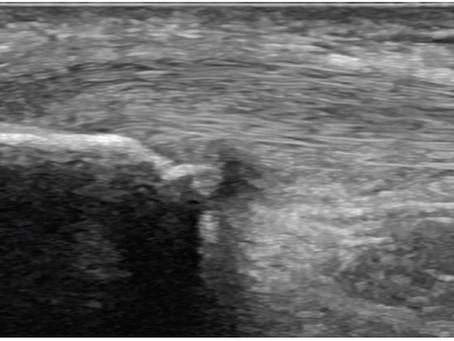 Aprendendo sobre ultrassonografia no sistema locomotor - imagens do tendões